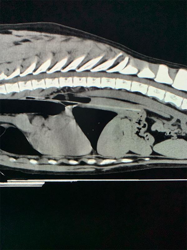 CT サジタル像 画像①