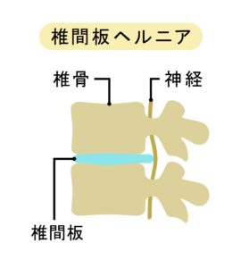椎間板ヘルニアの椎骨